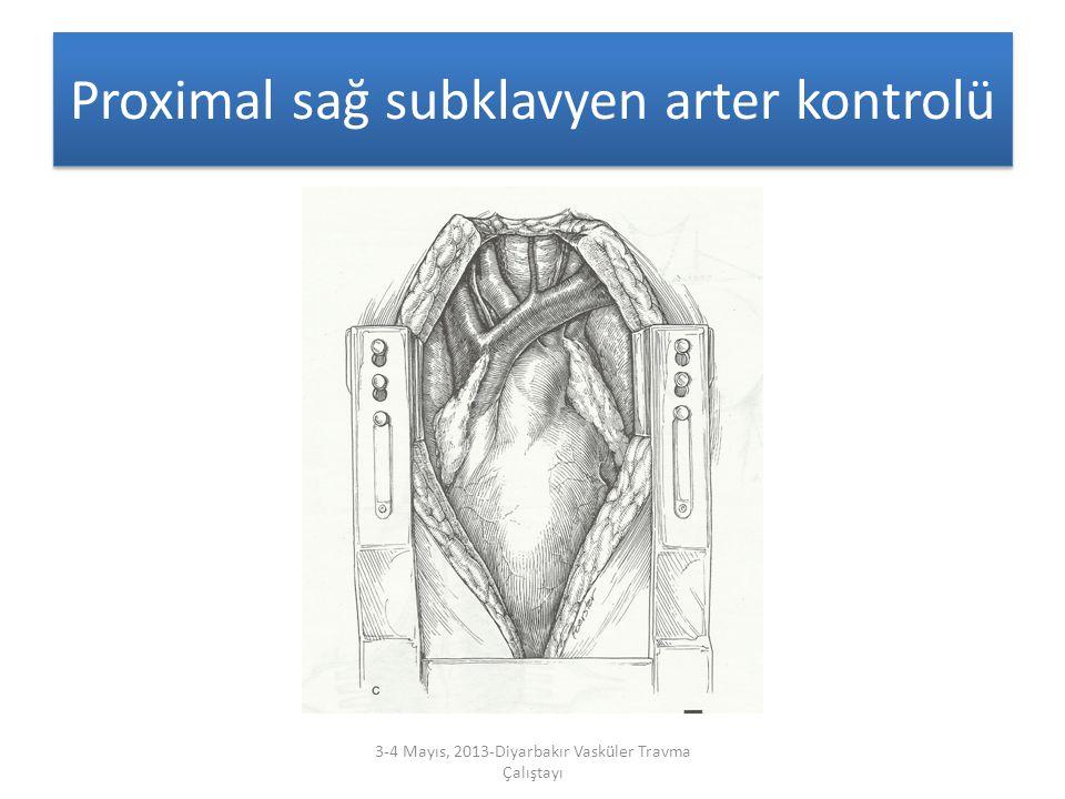 Proximal sağ subklavyen arter kontrolü