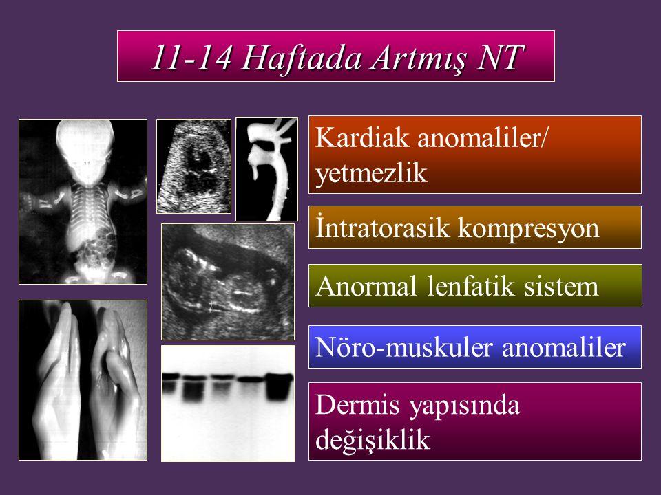 11-14 Haftada Artmış NT Kardiak anomaliler/ yetmezlik