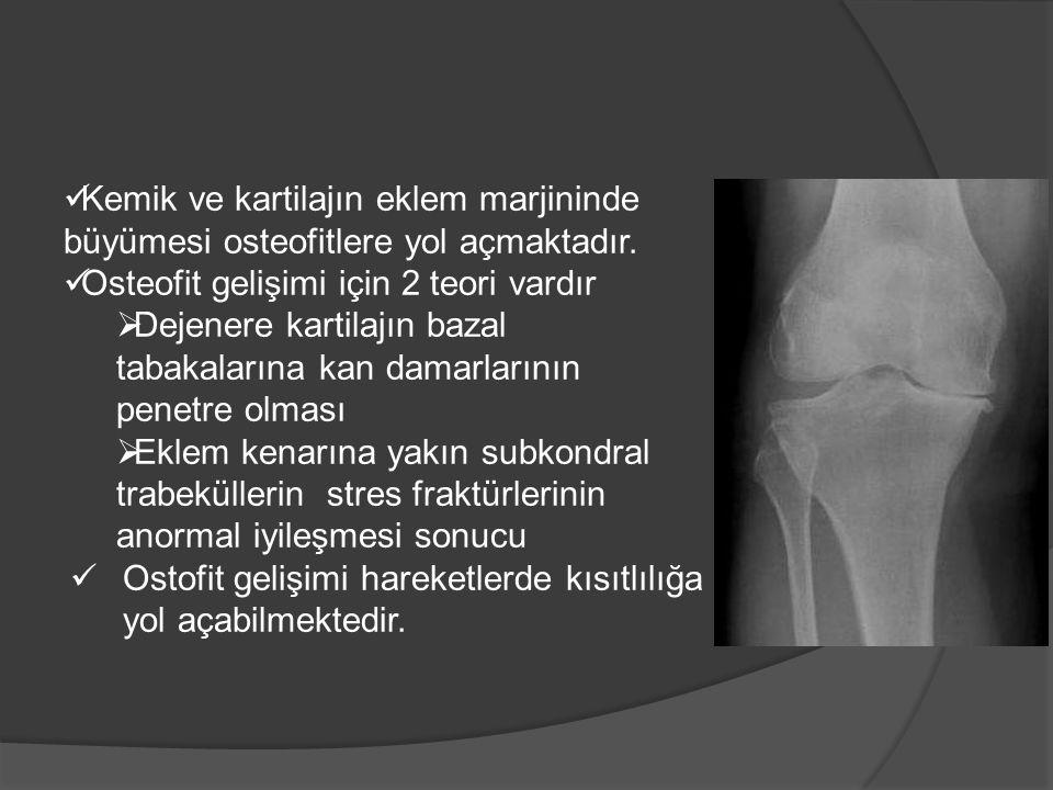 Kemik ve kartilajın eklem marjininde büyümesi osteofitlere yol açmaktadır.