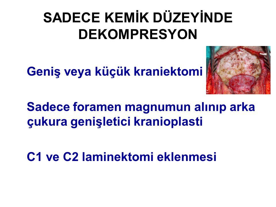 SADECE KEMİK DÜZEYİNDE DEKOMPRESYON