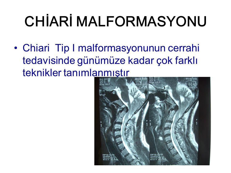 CHİARİ MALFORMASYONU Chiari Tip I malformasyonunun cerrahi tedavisinde günümüze kadar çok farklı teknikler tanımlanmıştır.