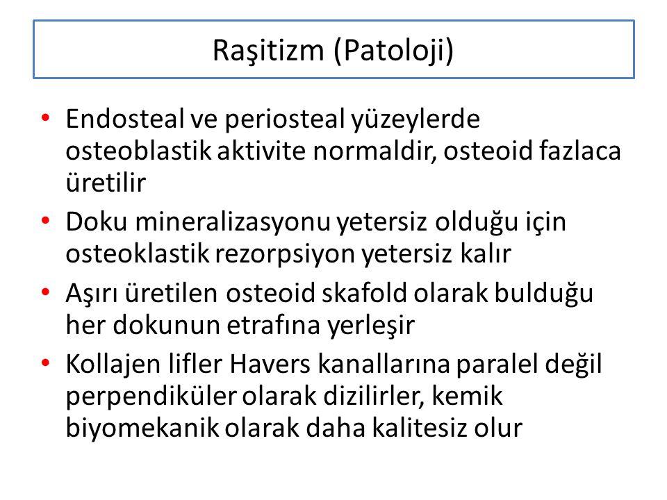 Raşitizm (Patoloji) Endosteal ve periosteal yüzeylerde osteoblastik aktivite normaldir, osteoid fazlaca üretilir.