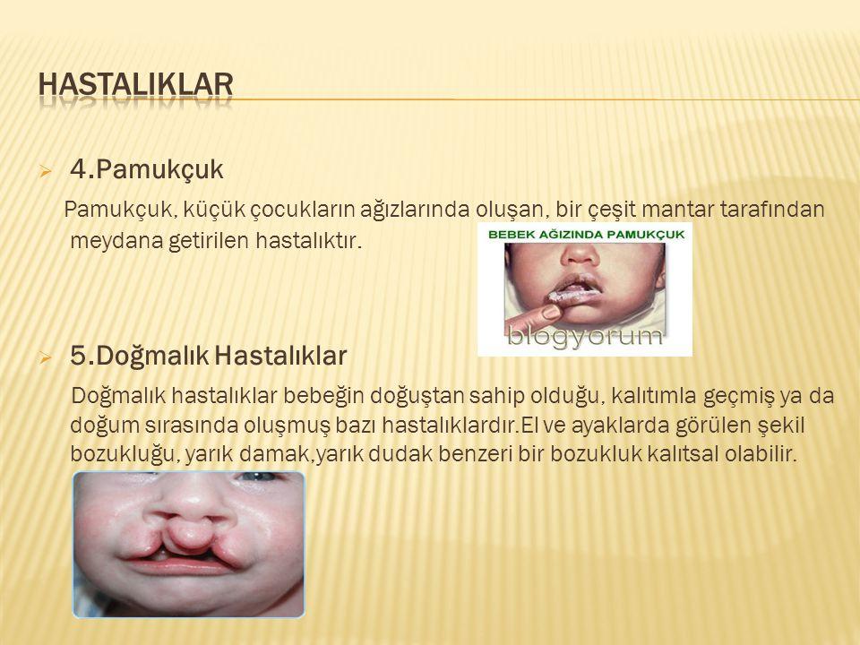 HASTALIKLAR 4.Pamukçuk 5.Doğmalık Hastalıklar