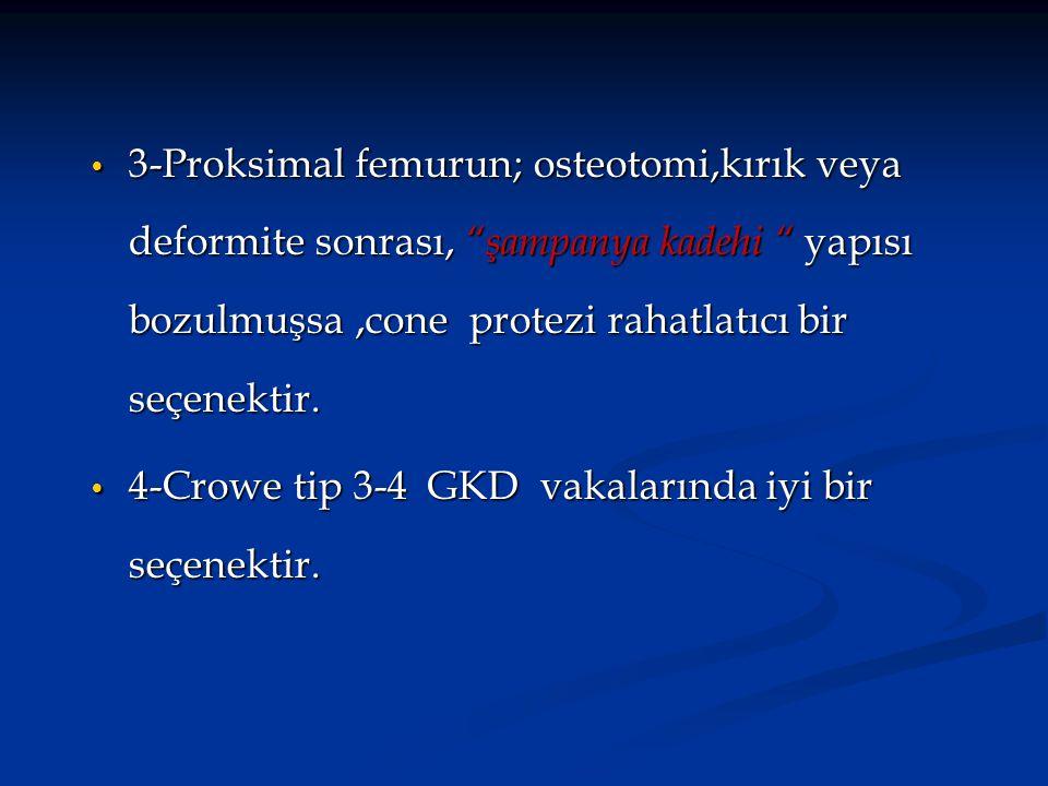 3-Proksimal femurun; osteotomi,kırık veya deformite sonrası, şampanya kadehi yapısı bozulmuşsa ,cone protezi rahatlatıcı bir seçenektir.