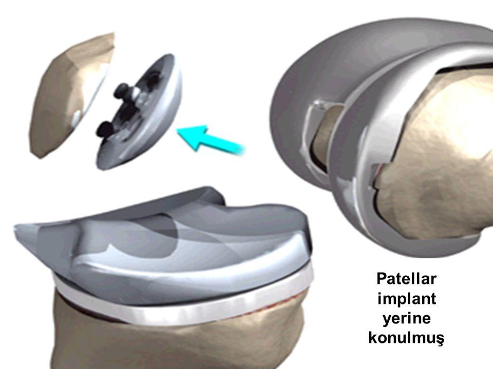 Patellar implant yerine konulmuş