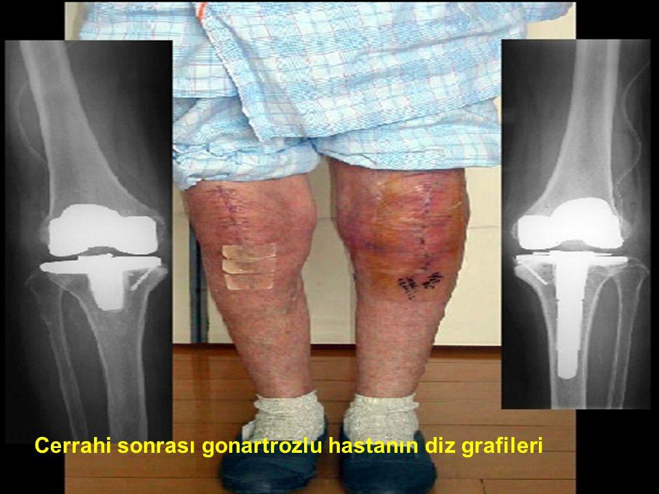 Cerrahi sonrası gonartrozlu hastanın diz grafileri