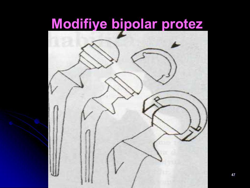 Modifiye bipolar protez