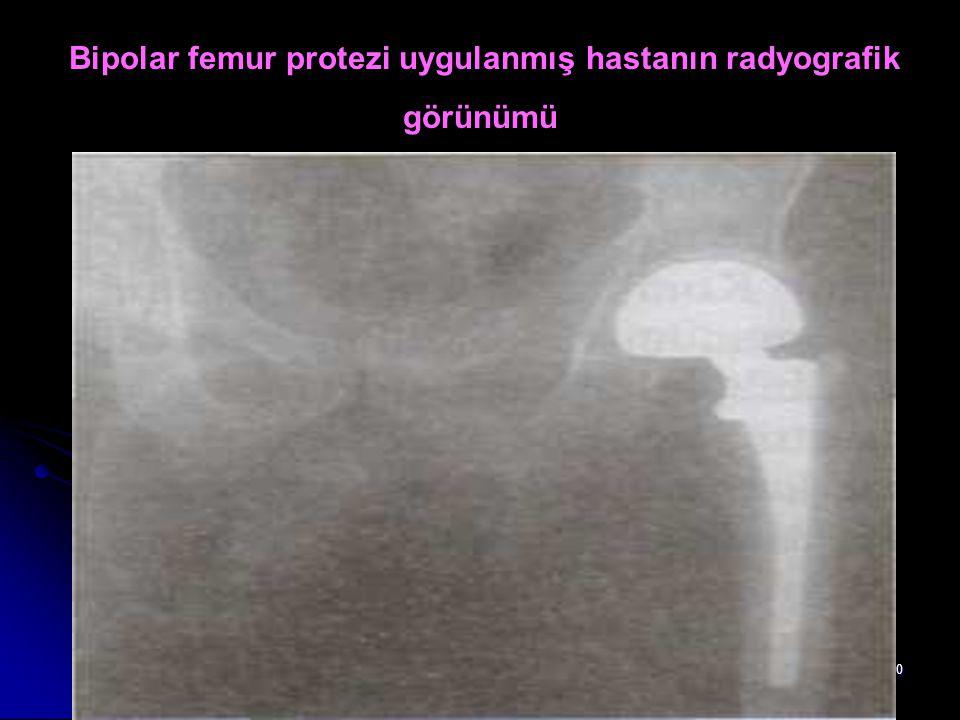 Bipolar femur protezi uygulanmış hastanın radyografik görünümü