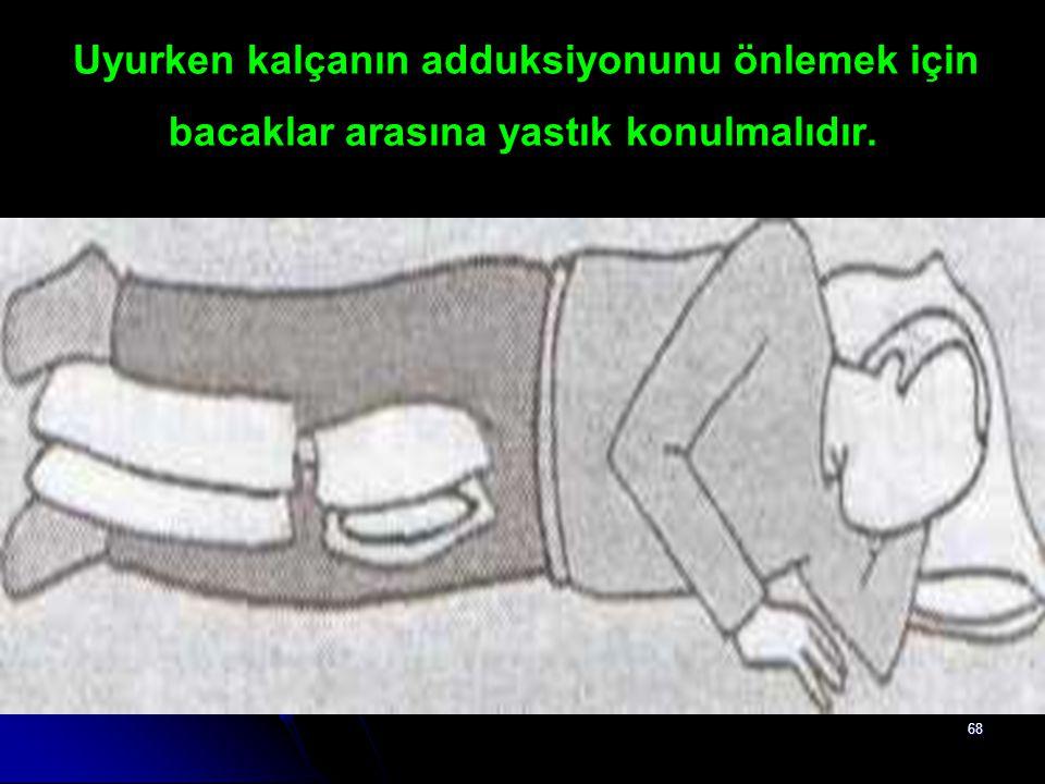 Uyurken kalçanın adduksiyonunu önlemek için bacaklar arasına yastık konulmalıdır.