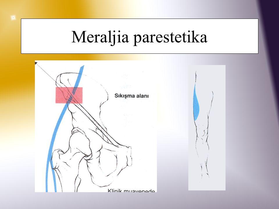 Meraljia parestetika