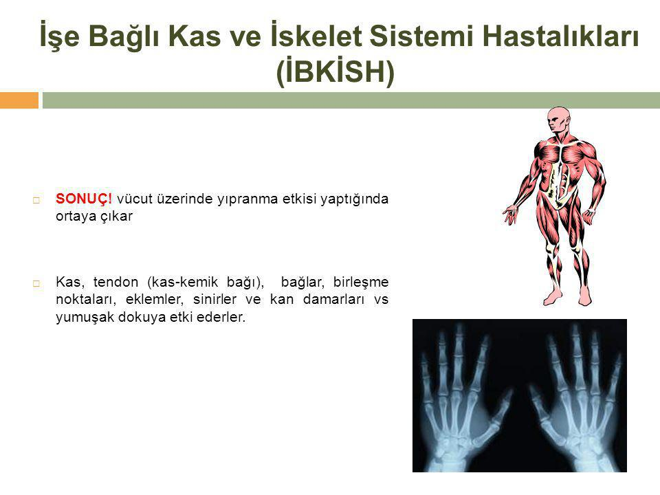 İşe Bağlı Kas ve İskelet Sistemi Hastalıkları (İBKİSH)