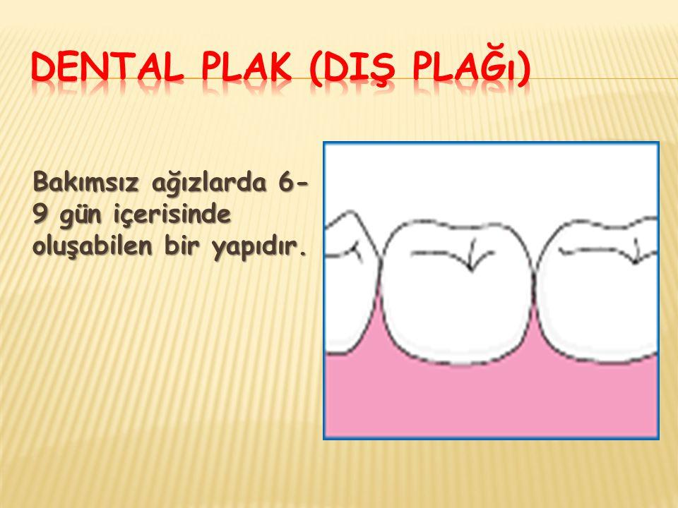 Dental Plak (Diş Plağı)