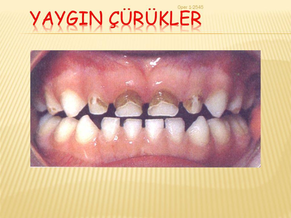 YAYGIN ÇÜRÜKLER Oper 1-2545