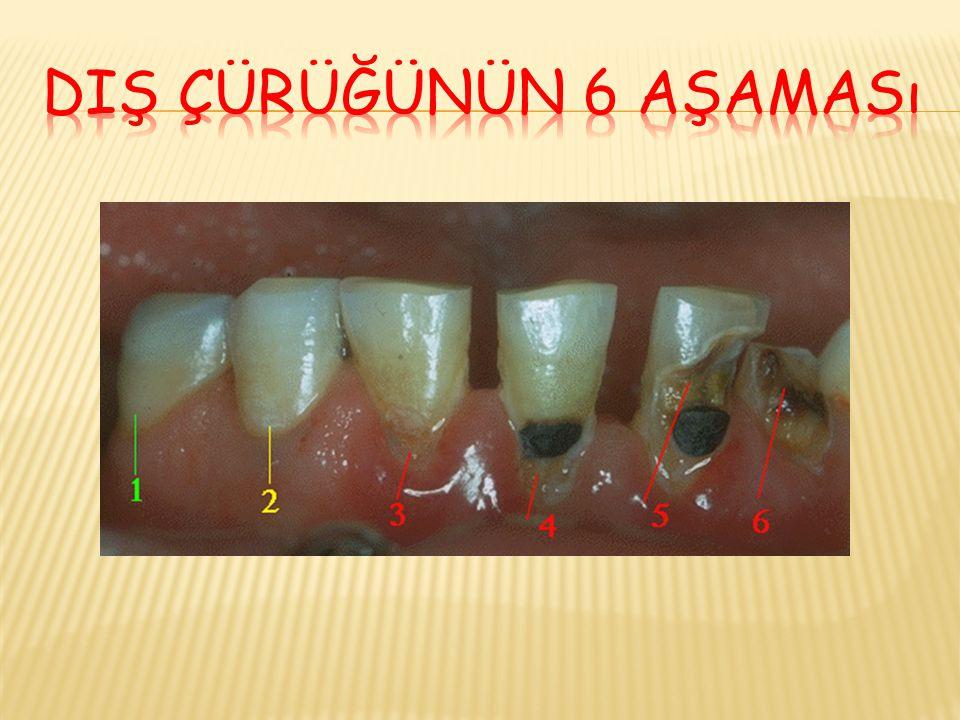 Diş çürüğünün 6 aşaması