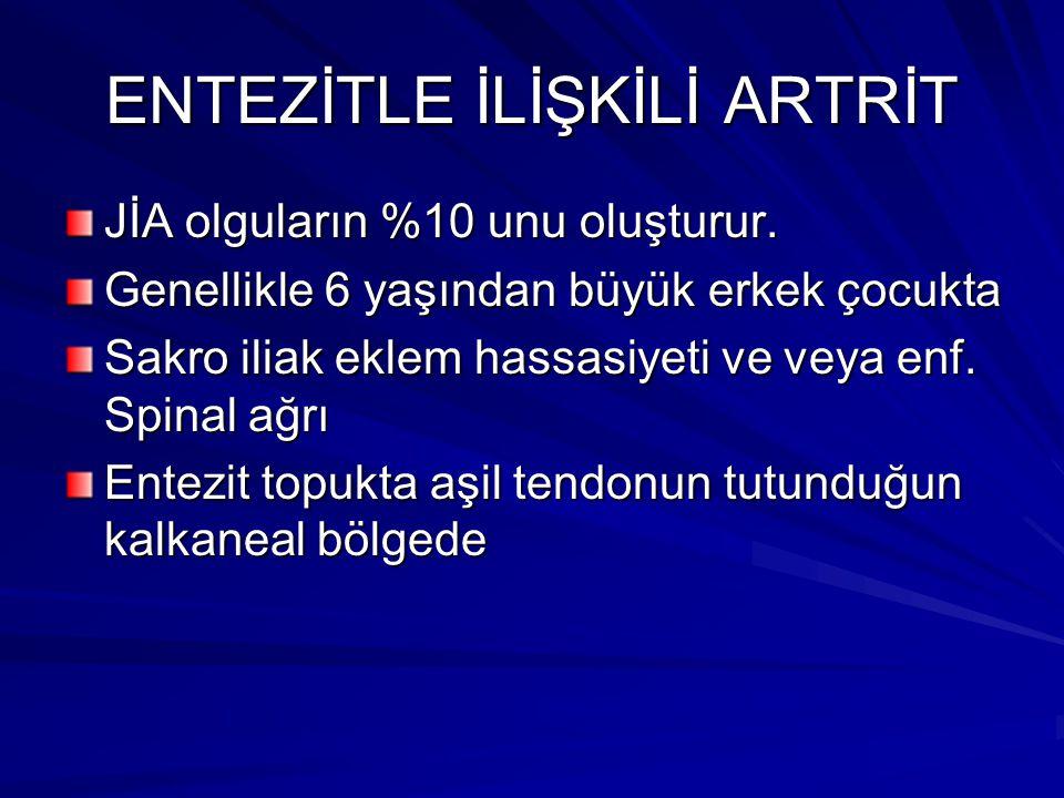 ENTEZİTLE İLİŞKİLİ ARTRİT