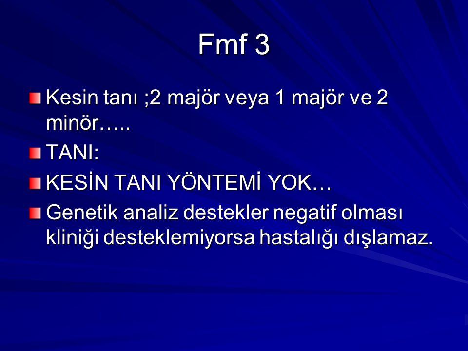 Fmf 3 Kesin tanı ;2 majör veya 1 majör ve 2 minör….. TANI: