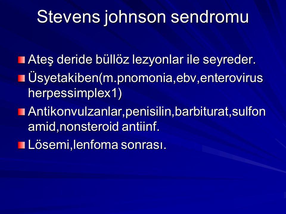 Stevens johnson sendromu