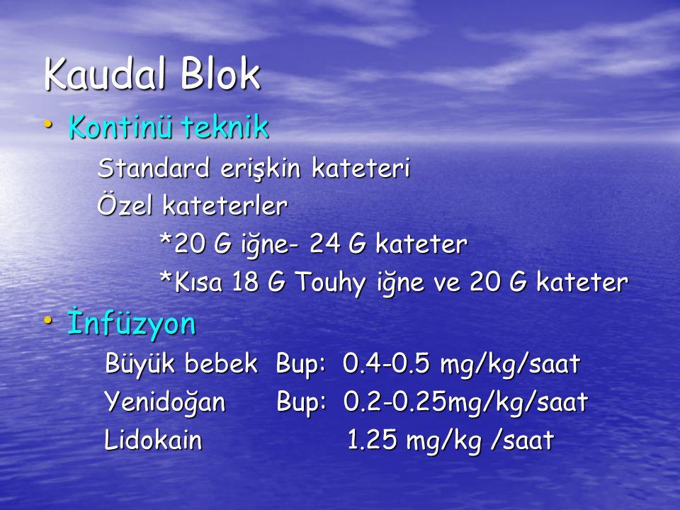 Kaudal Blok Kontinü teknik İnfüzyon Standard erişkin kateteri