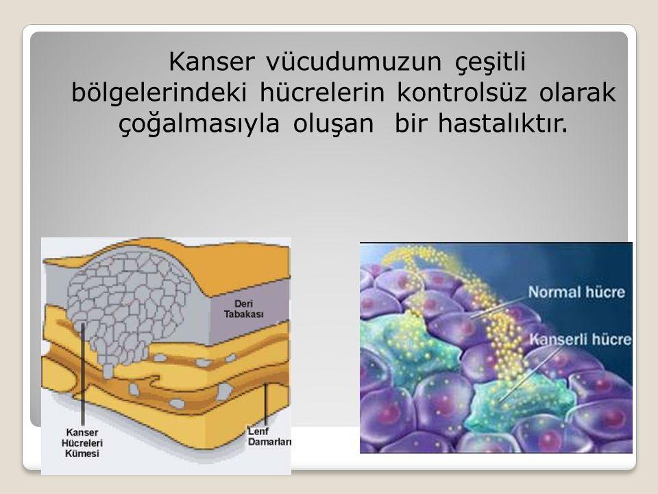 Kanser vücudumuzun çeşitli bölgelerindeki hücrelerin kontrolsüz olarak çoğalmasıyla oluşan bir hastalıktır.