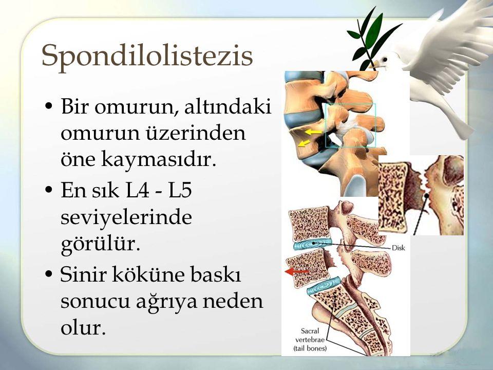 Spondilolistezis Bir omurun, altındaki omurun üzerinden öne kaymasıdır. En sık L4 - L5 seviyelerinde görülür.