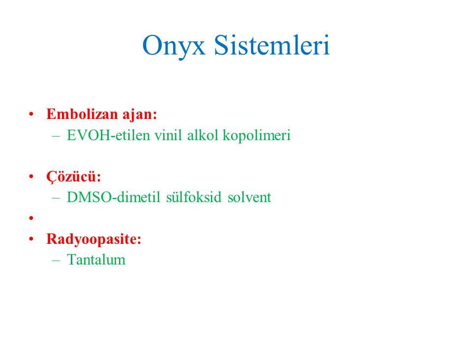 Onyx Sistemleri Embolizan ajan: EVOH-etilen vinil alkol kopolimeri