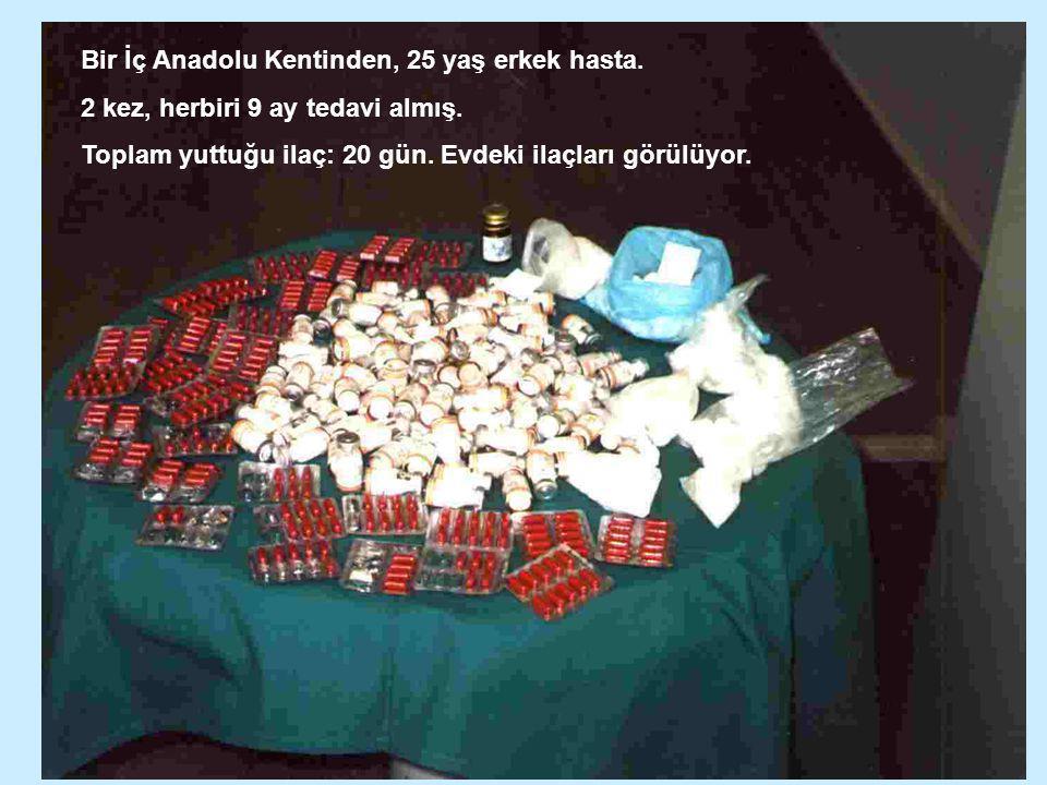 Bir İç Anadolu Kentinden, 25 yaş erkek hasta.