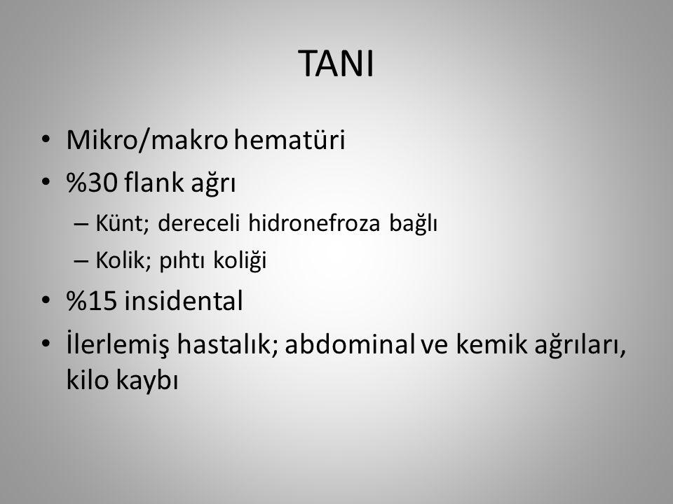 TANI Mikro/makro hematüri %30 flank ağrı %15 insidental