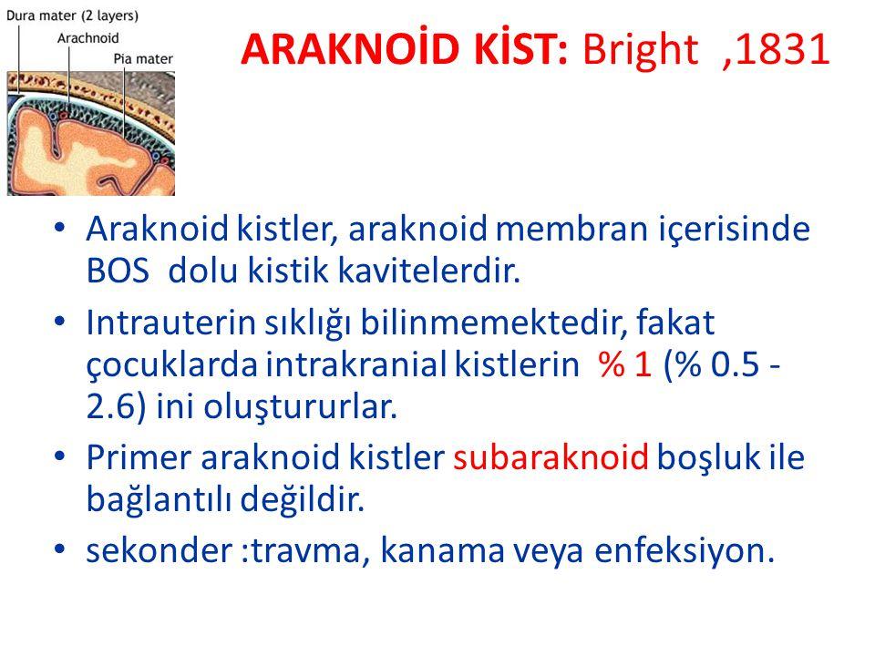 ARAKNOİD KİST: Bright ,1831 Araknoid kistler, araknoid membran içerisinde BOS dolu kistik kavitelerdir.