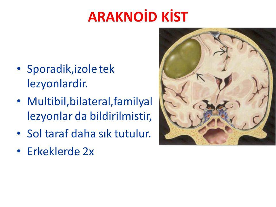 ARAKNOİD KİST Sporadik,izole tek lezyonlardir.