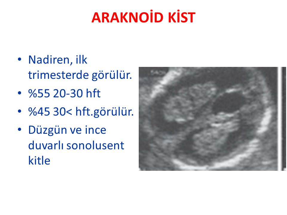 ARAKNOİD KİST Nadiren, ilk trimesterde görülür. %55 20-30 hft