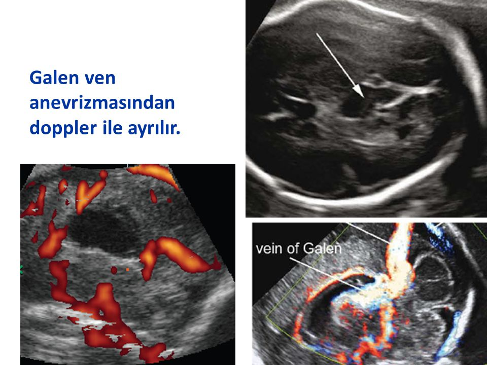 Galen ven anevrizmasından doppler ile ayrılır.