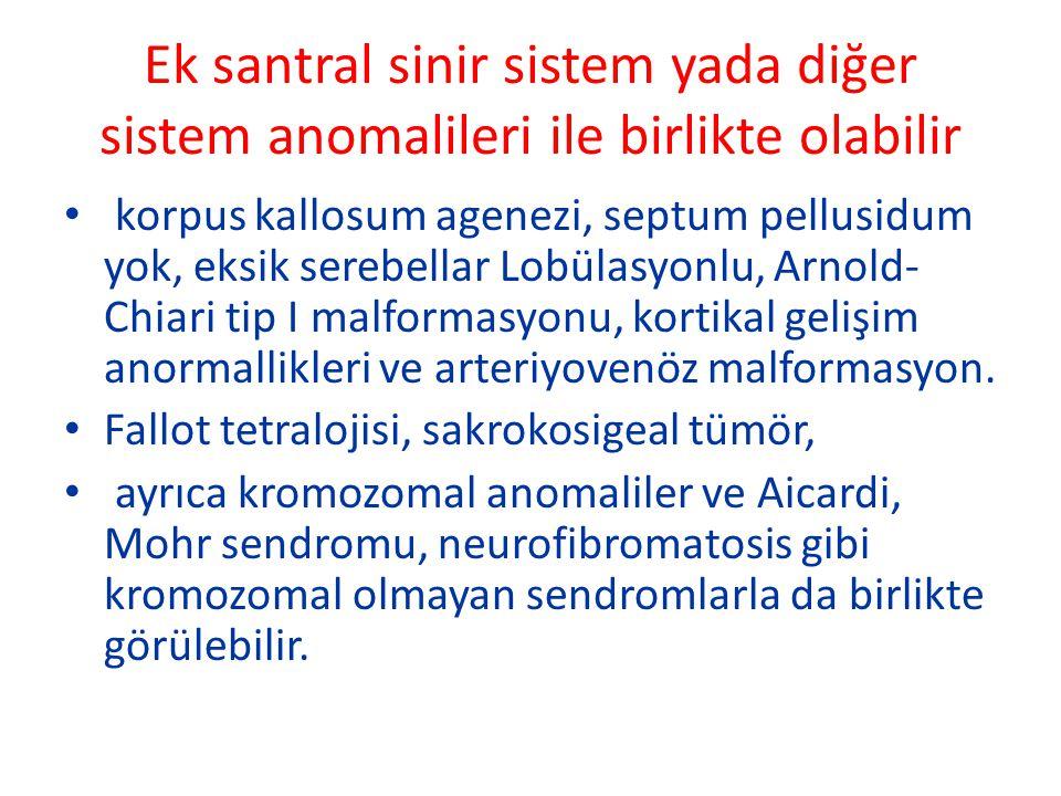 Ek santral sinir sistem yada diğer sistem anomalileri ile birlikte olabilir