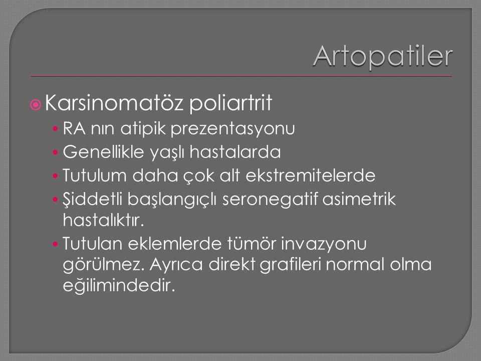 Artopatiler Karsinomatöz poliartrit RA nın atipik prezentasyonu