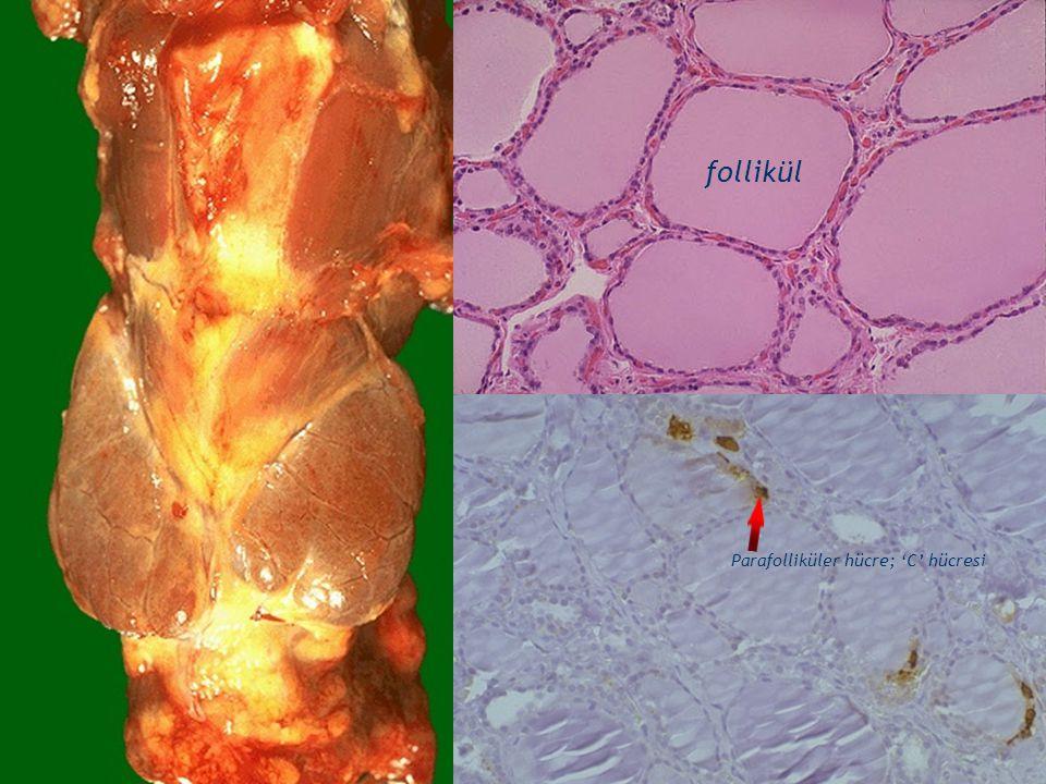 follikül Tiroidin Benign Cerrahi Hastalıkları