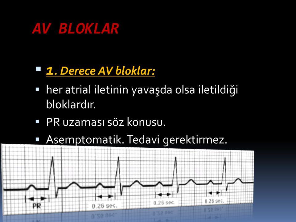 AV BLOKLAR 1. Derece AV bloklar:
