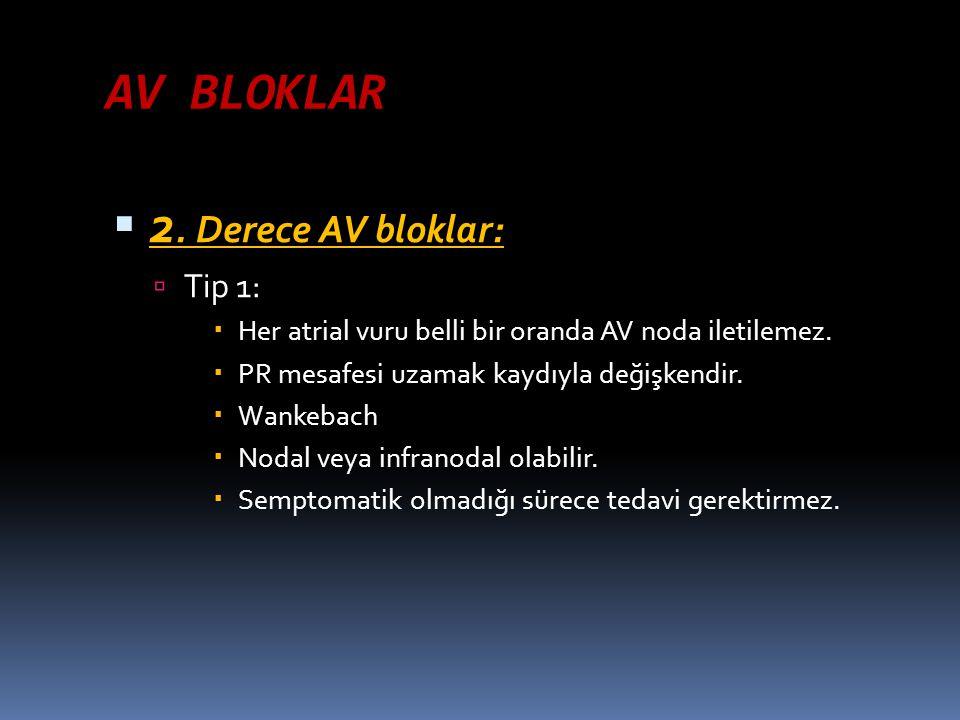 AV BLOKLAR 2. Derece AV bloklar: Tip 1: