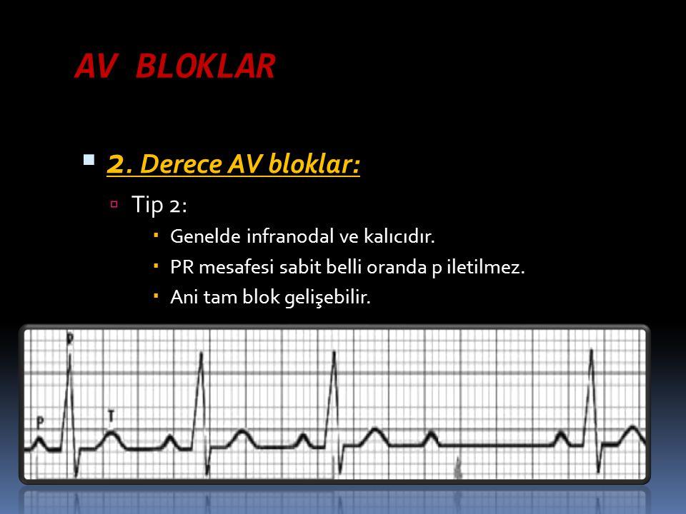 AV BLOKLAR 2. Derece AV bloklar: Tip 2: