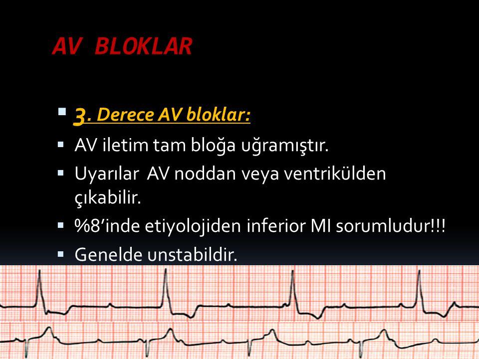 AV BLOKLAR 3. Derece AV bloklar: AV iletim tam bloğa uğramıştır.