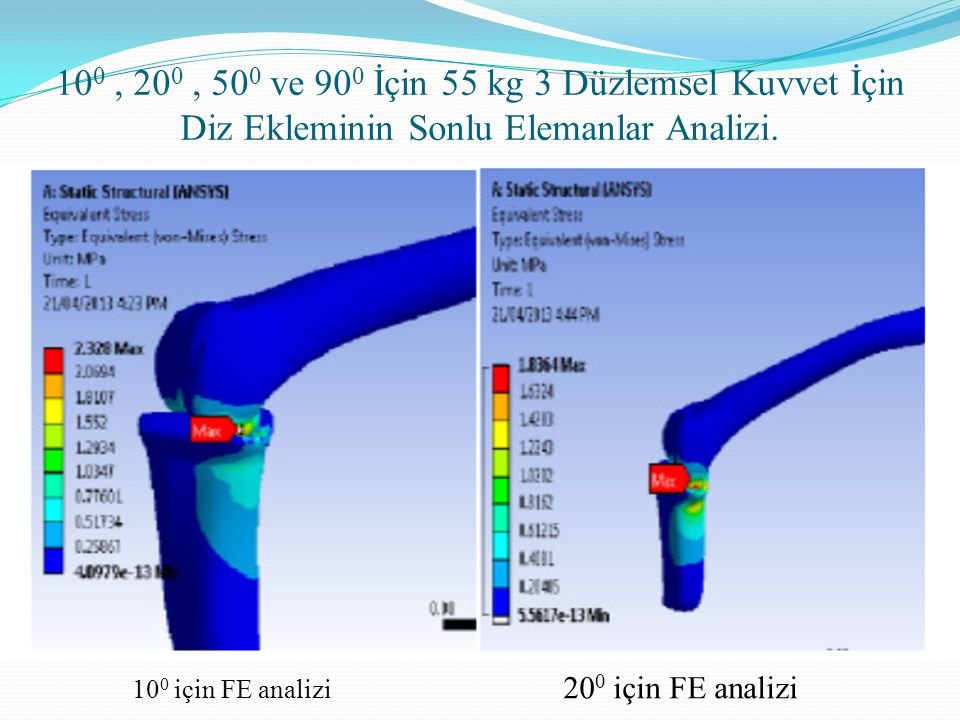 100 , 200 , 500 ve 900 İçin 55 kg 3 Düzlemsel Kuvvet İçin Diz Ekleminin Sonlu Elemanlar Analizi.