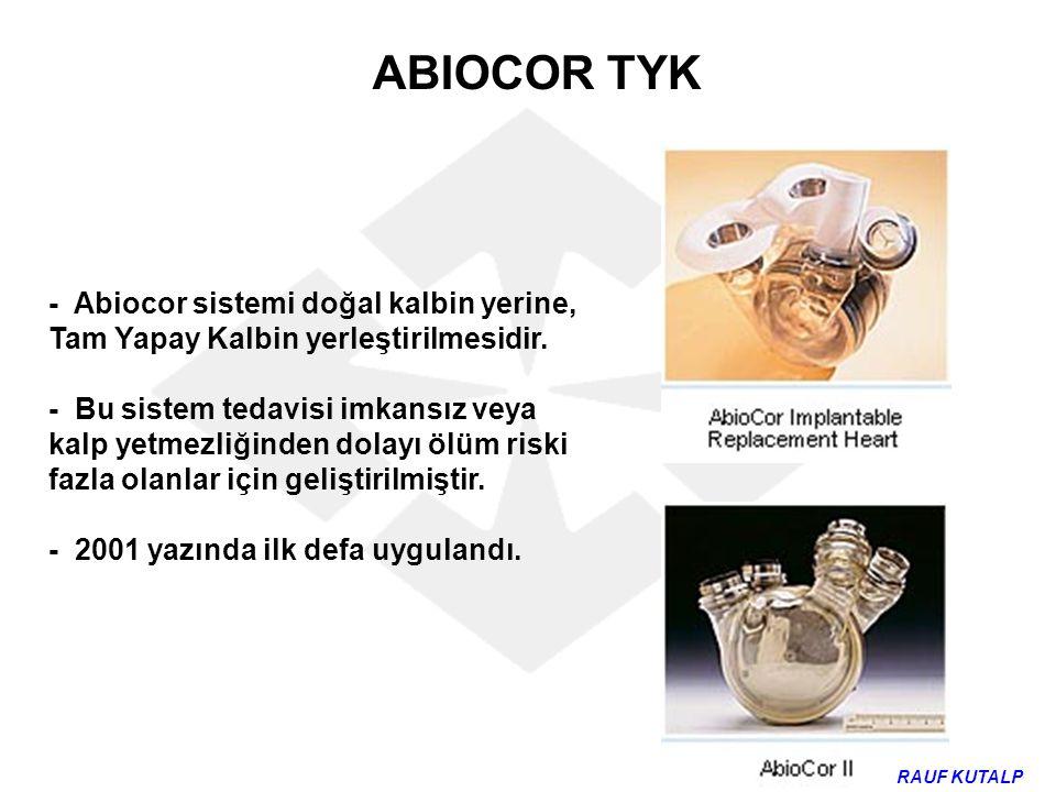 ABIOCOR TYK - Abiocor sistemi doğal kalbin yerine, Tam Yapay Kalbin yerleştirilmesidir.