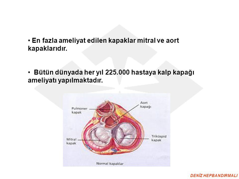 En fazla ameliyat edilen kapaklar mitral ve aort kapaklarıdır.