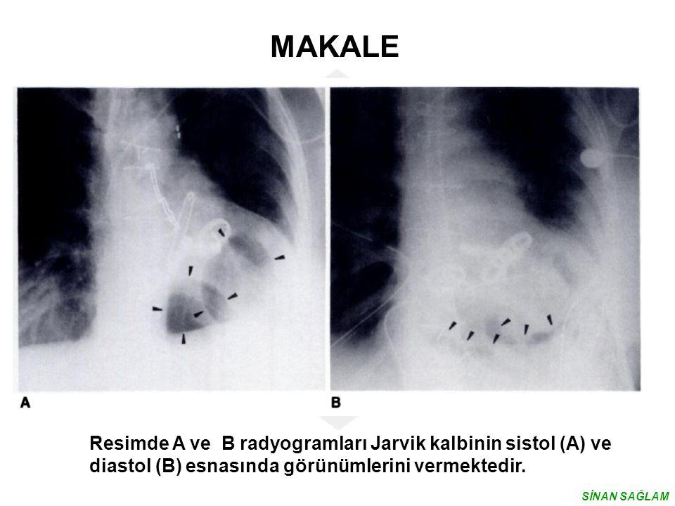 MAKALE Resimde A ve B radyogramları Jarvik kalbinin sistol (A) ve diastol (B) esnasında görünümlerini vermektedir.