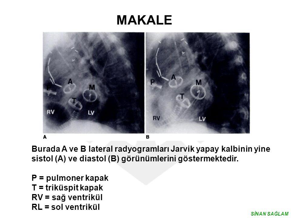 MAKALE Burada A ve B lateral radyogramları Jarvik yapay kalbinin yine sistol (A) ve diastol (B) görünümlerini göstermektedir.