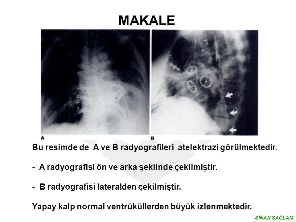 MAKALE Bu resimde de A ve B radyografileri atelektrazi görülmektedir.