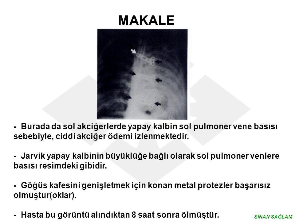 MAKALE - Burada da sol akciğerlerde yapay kalbin sol pulmoner vene basısı sebebiyle, ciddi akciğer ödemi izlenmektedir.
