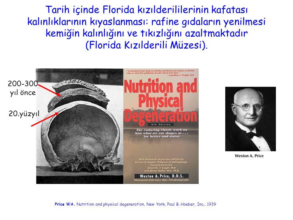 Tarih içinde Florida kızılderililerinin kafatası kalınlıklarının kıyaslanması: rafine gıdaların yenilmesi kemiğin kalınlığını ve tıkızlığını azaltmaktadır (Florida Kızılderili Müzesi).