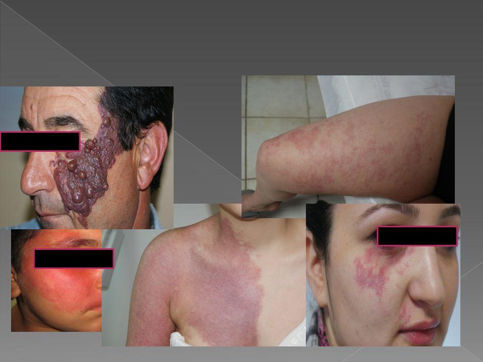 PWS'ler uzun yıllar boyunca dermatolojinin öksüz tablolarından biri olmuştur.