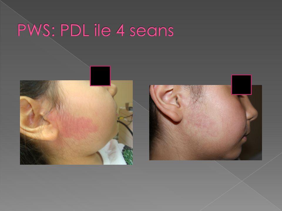 PWS: PDL ile 4 seans
