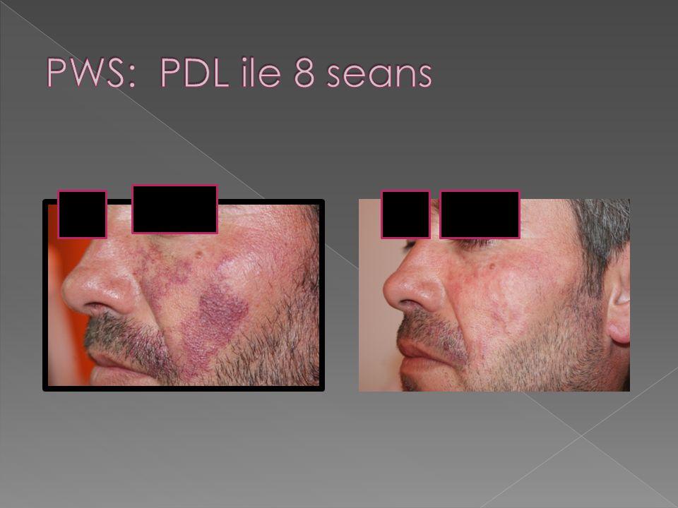 PWS: PDL ile 8 seans