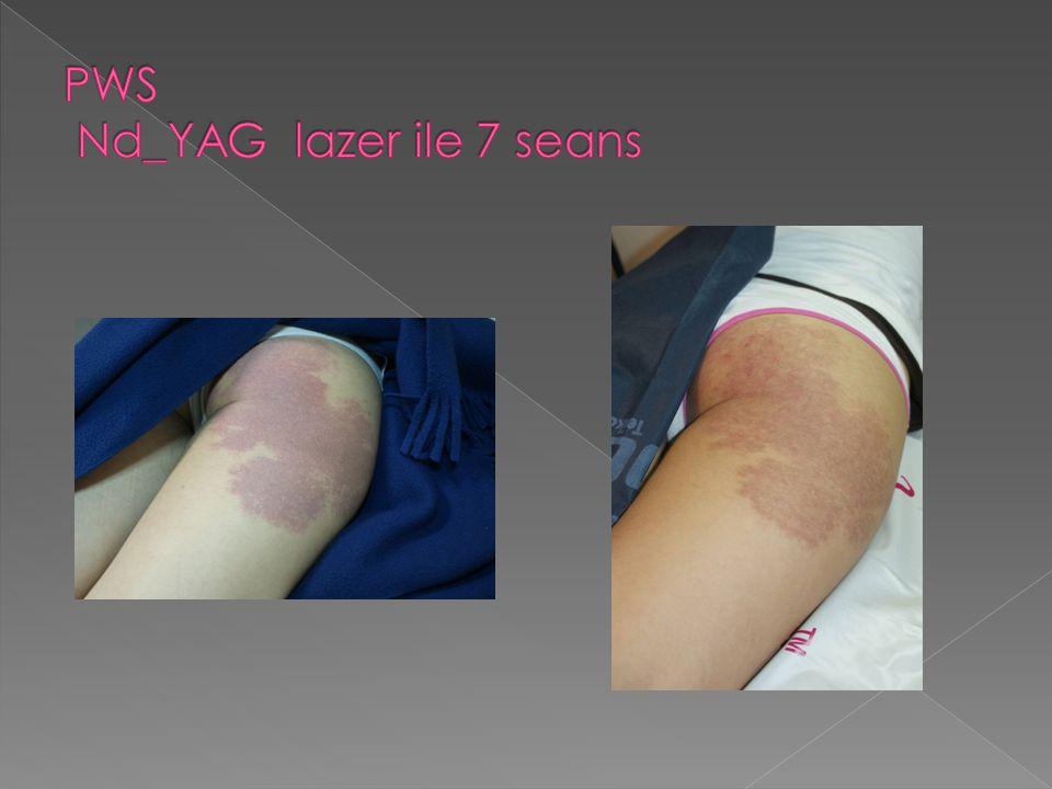 PWS Nd_YAG lazer ile 7 seans